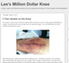 Lee's Million Dollar Knee