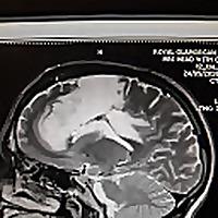 Ben's Brain Tumour Blog