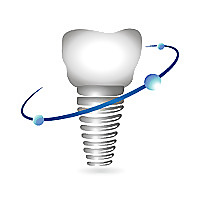 Frisco Oral & Dental Implant Surgery Blog