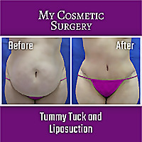 My Cosmetic Surgery - Youtube