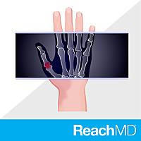 Beyond Skin Deep | Impacts of Psoriatic Arthritis