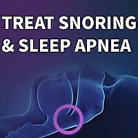 Treat Snoring & Sleep Apnea