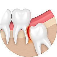 ImpactedWisdom | Teeth and Oral Health Blog