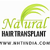 Natural Hair transplant & hair loss treatments