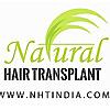 Natural Hair transplant & hair loss treatments