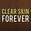 Clear Skin Forever - Diet for Acne