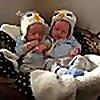 Monoamniotic Twins