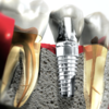Dental Implants Professionals Blog