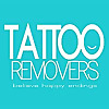 Tattoo Removers.ink