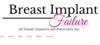 Breast Implant Failure