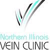 Northern Illinois Vein Clinic | Varicose Vein Blog