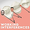 Working Interferences | Dental Podcast for Dentists