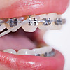 clinical orthodontics